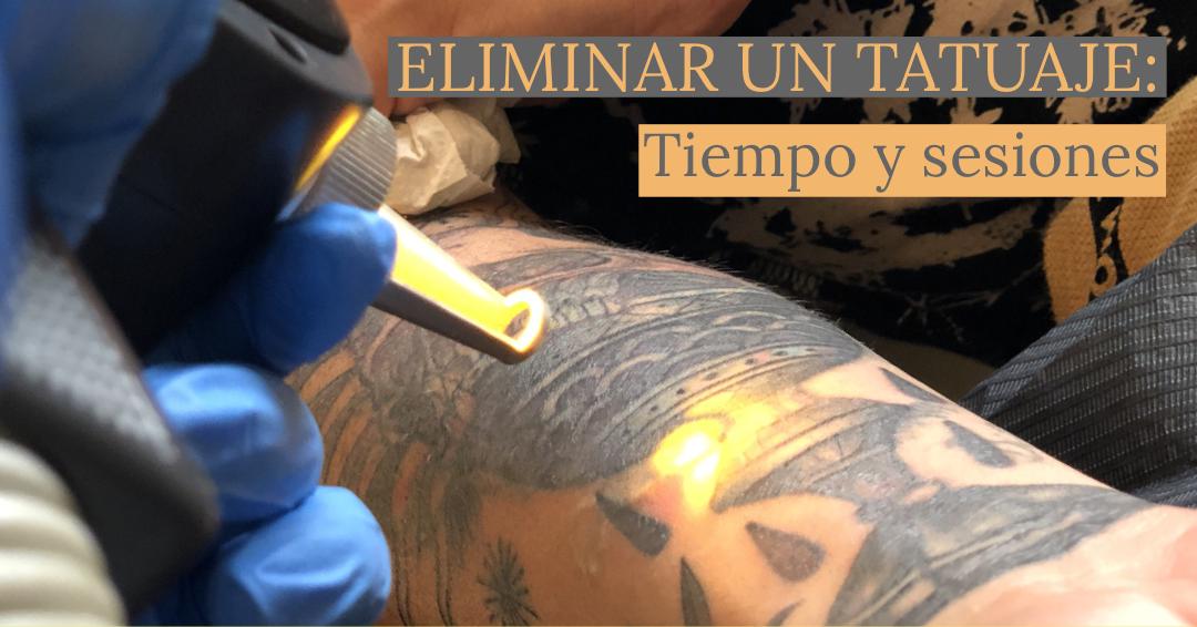 Eliminar un tatuaje: tiempo y sesiones.